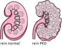 La polykystose rénale ou PKD